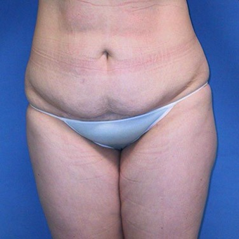 25-34 year old woman treated with Tummy Tuck before 3496764