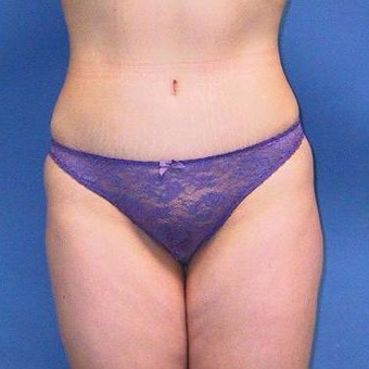 25-34 year old woman treated with Tummy Tuck after 3496764