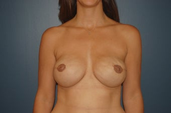 breast reconstruction with expander, ADM and Implants. after 1060950