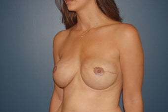 breast reconstruction with expander, ADM and Implants. 1060950