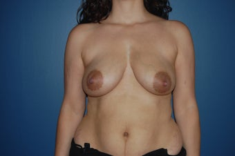 breast reconstruction with expander, ADM and Implants. before 1060950