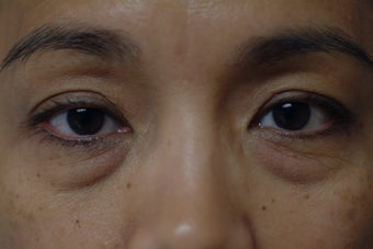 45 year old women with lower eyelid bags before 1323919
