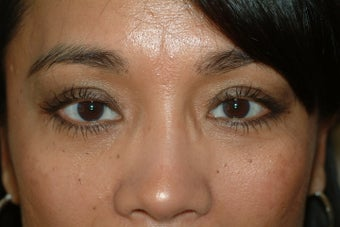 45 year old women with lower eyelid bags after 1323919