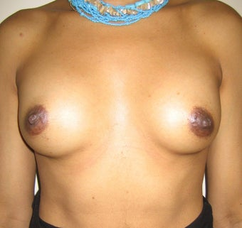 Breast Augmentation after 143980