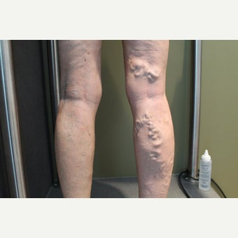 65-74 year old woman treated with Sclerotherapy before 2081414