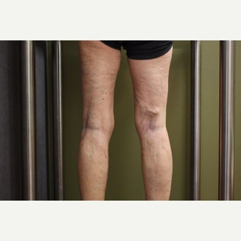65-74 year old woman treated with Sclerotherapy after 2081414