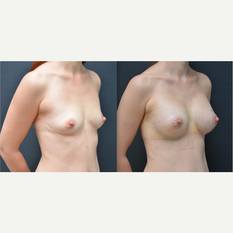 25-34 year old woman treated with Breast Augmentation before 3238763