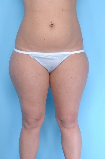 Liposuction on thighs, buttocks, abdomen before 67284