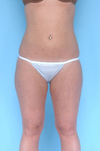 Liposuction on thighs, buttocks, abdomen after 67284