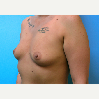 25-34 year old woman treated with Breast Implants before 3439933