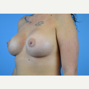 25-34 year old woman treated with Breast Implants after 3439933