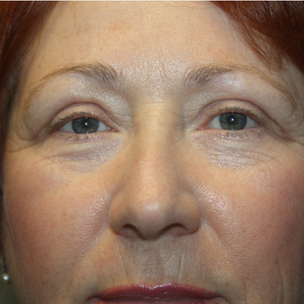 55-64 year old woman treated with Eyelid Surgery after 3808810
