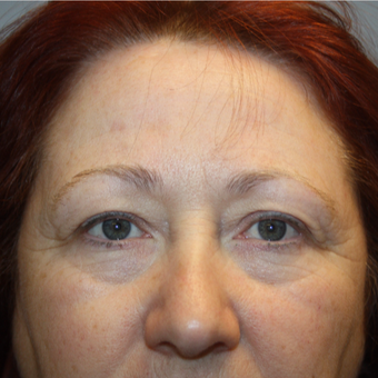 55-64 year old woman treated with Eyelid Surgery before 3808810