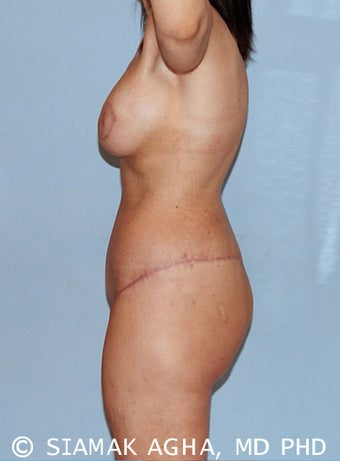 41 year old woman treated with Body Lift 1745331