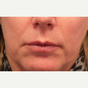 55-64 year old woman treated with Lip Augmentation before 3675119