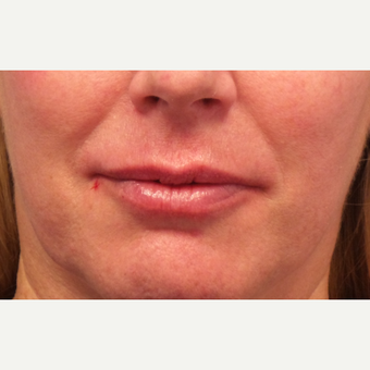 55-64 year old woman treated with Lip Augmentation after 3675119