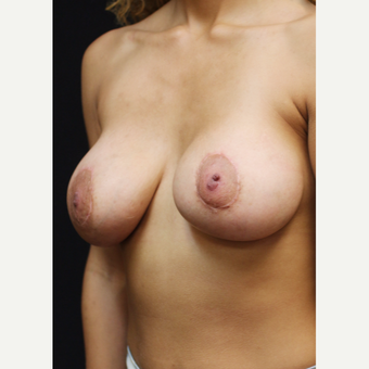 22 year old woman treated with Breast Implants after 3064245
