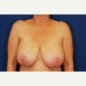 55-64 year old woman treated with Breast Reduction before 3619322