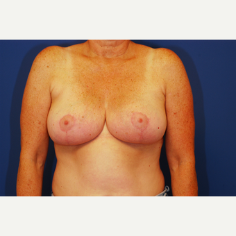 55-64 year old woman treated with Breast Reduction after 3619322