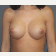 25-34 year old woman treated with Breast Implants after 3303952