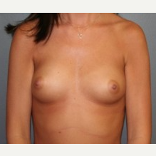 25-34 year old woman treated with Breast Implants before 3303952