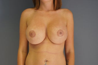 29yo Breast Augmentation Revision after 989569