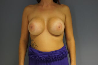 29yo Breast Augmentation Revision before 989569