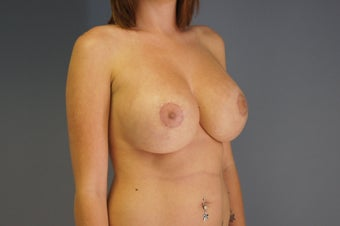29yo Breast Augmentation Revision 989569