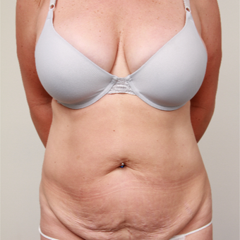 45-54 year old woman treated with Tummy Tuck before 3488411