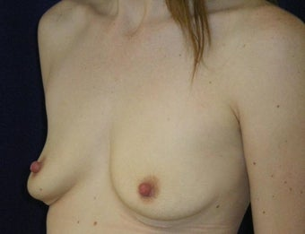 31 Year Old Female, Breast Implant Removal, No Breast Lift 1166102