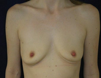 31 Year Old Female, Breast Implant Removal, No Breast Lift after 1166102