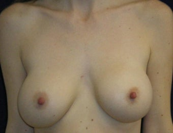31 Year Old Female, Breast Implant Removal, No Breast Lift before 1166102