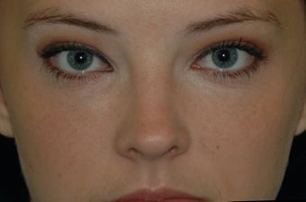 Restylane injected under the eyes after 577178