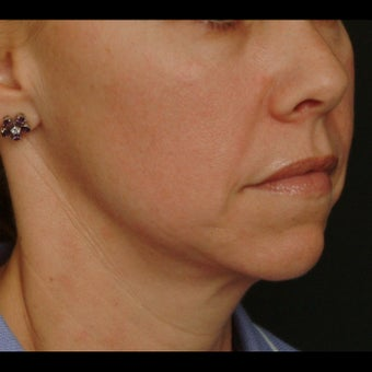 45-54 year old woman treated for Liquid Facelift before 1479641