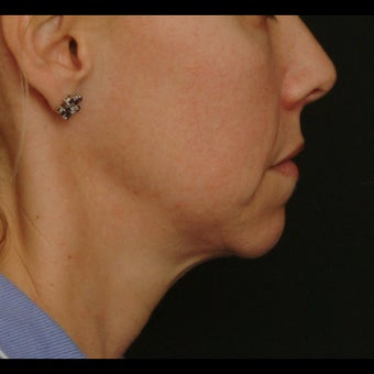 45-54 year old woman treated for Liquid Facelift 1479641