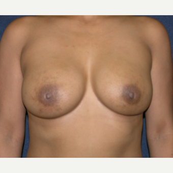 25-34 year old woman treated with Breast Implants after 3455123