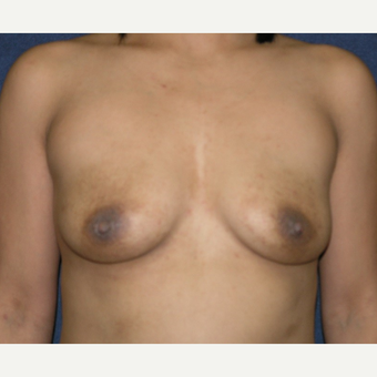 25-34 year old woman treated with Breast Implants before 3455123