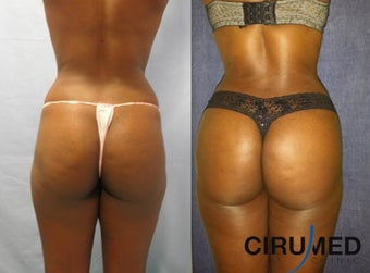 Brazilian Butt Lift transfer buttock augmentation 850cc each side. before 1331620
