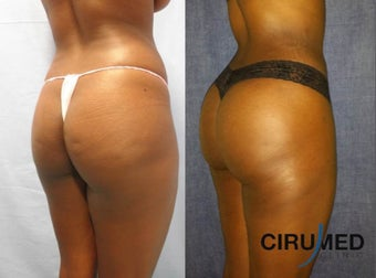 Brazilian Butt Lift transfer buttock augmentation 850cc each side. 1331620