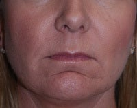 Juvederm to Lips and Chin before 1099713