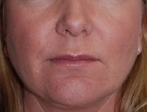 Juvederm to Lips and Chin after 1099713