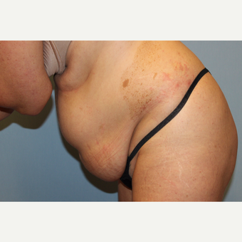 35-44 year old woman treated with Tummy Tuck before 3529120