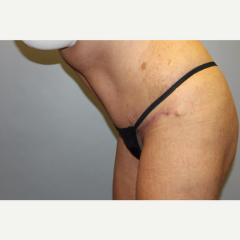 35-44 year old woman treated with Tummy Tuck after 3529120