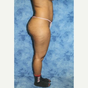 25-34 year old woman treated with Liposuction before 2247273