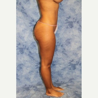 25-34 year old woman treated with Liposuction after 2247273