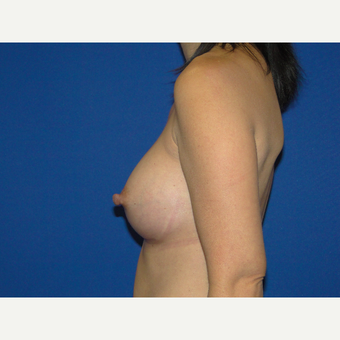 Breast Augmentation with 375 cc Silicone Implants after 3850751