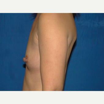 Breast Augmentation with 375 cc Silicone Implants before 3850751