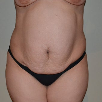 25-34 year old woman treated with Tummy Tuck before 1959766