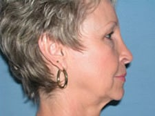 45-54 year old woman treated with Facelift 3529926