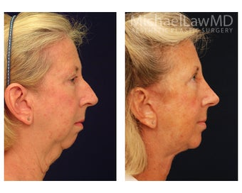Facial Rejuvenation before 1285283